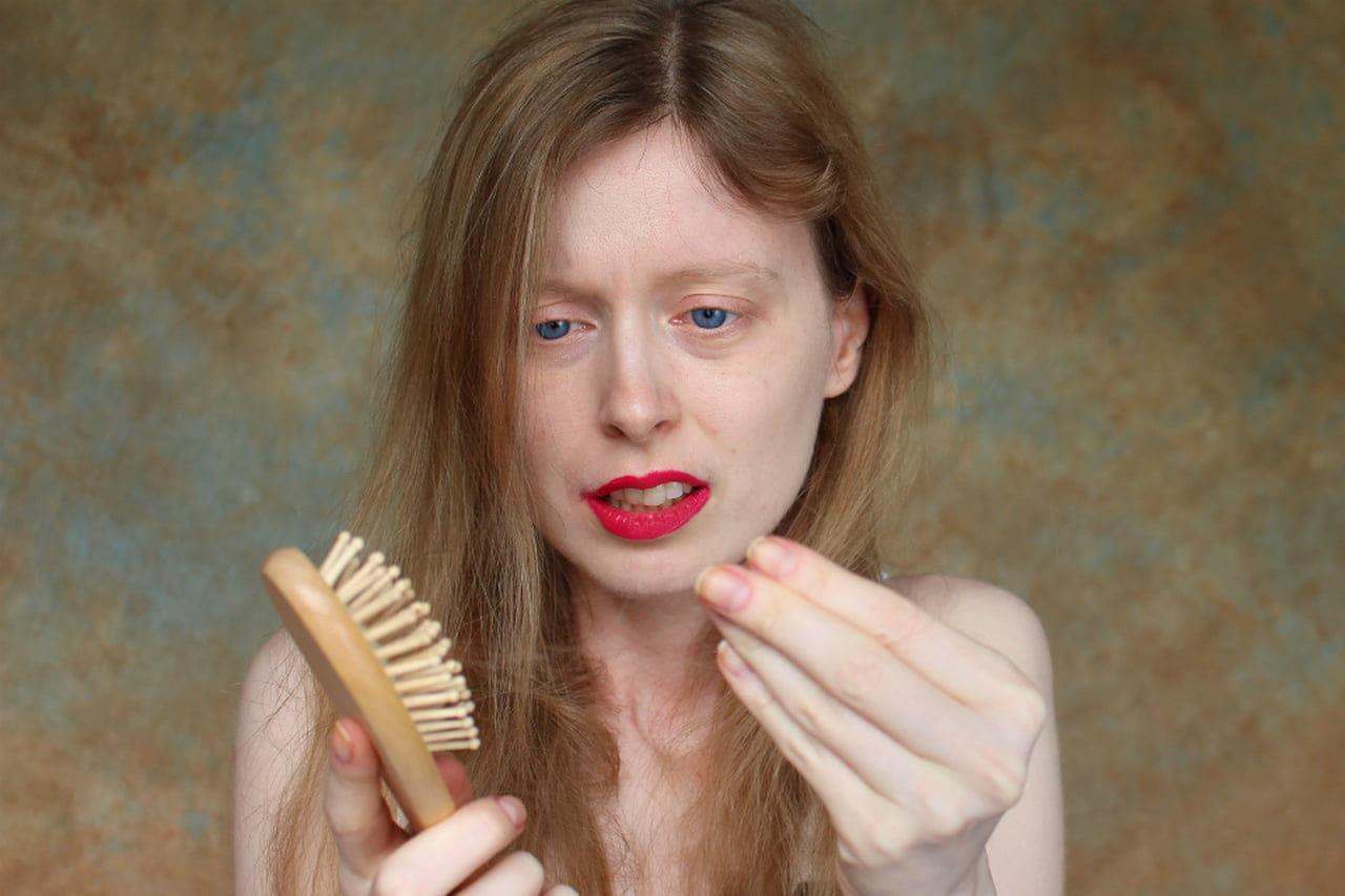 Alopecia: un problema anche per le donne - Magazine delle ...